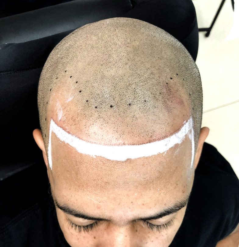 smp-scalp-micropigmentation-before