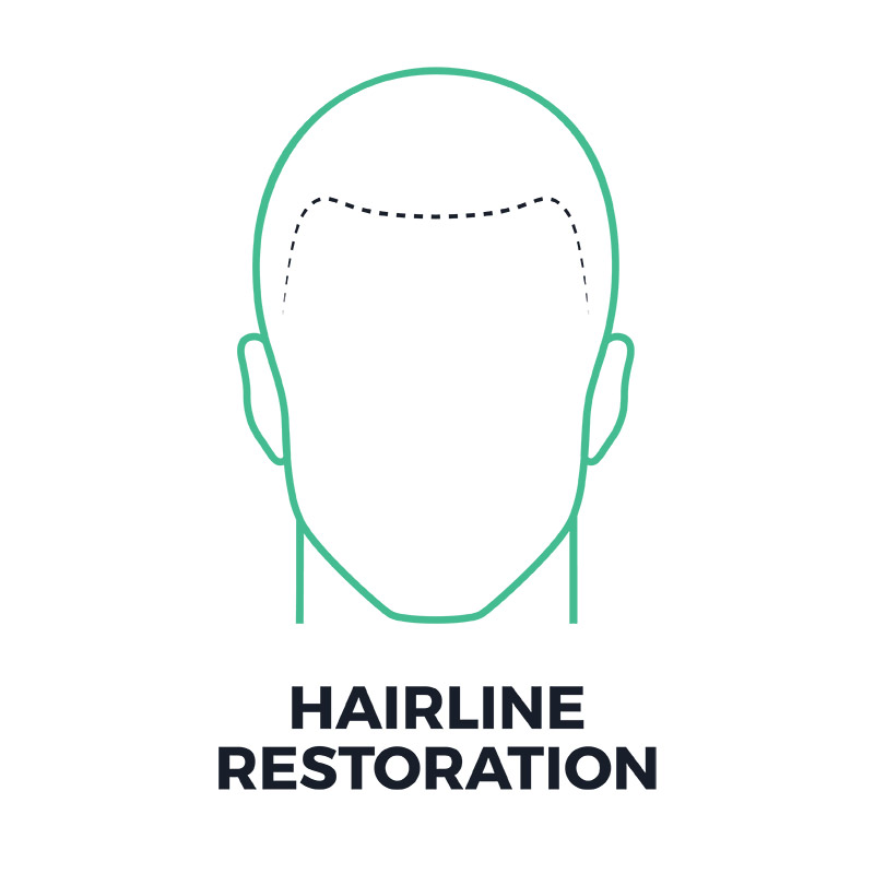 smp-hairline-restoration-smpflorida