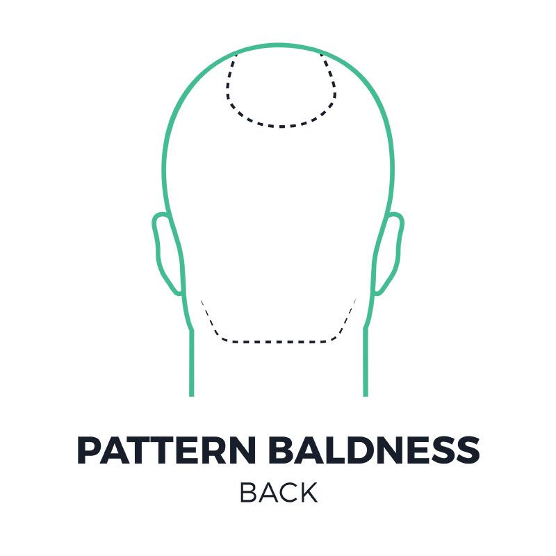 smp-pattern-baldness-back-smpflorida