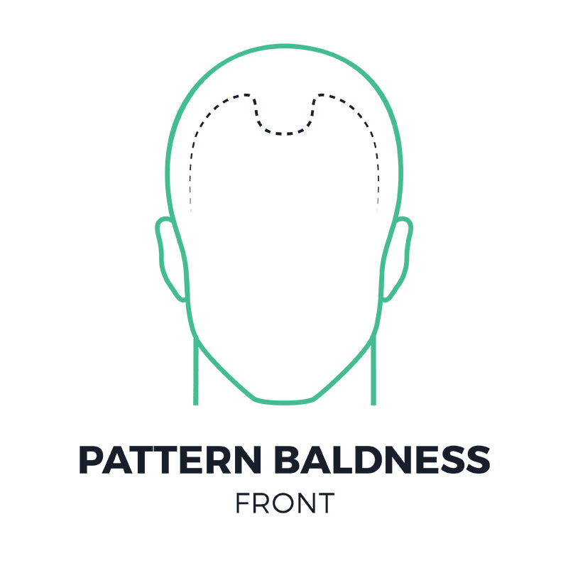 smp-pattern-baldness-front-smpflorida