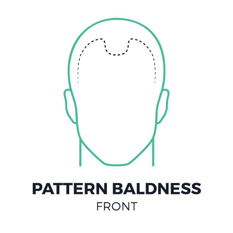 smp-pattern-baldness-front-smpflorida