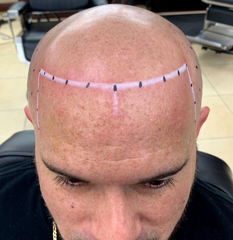 smp-scalp-micropigmentation-before-3