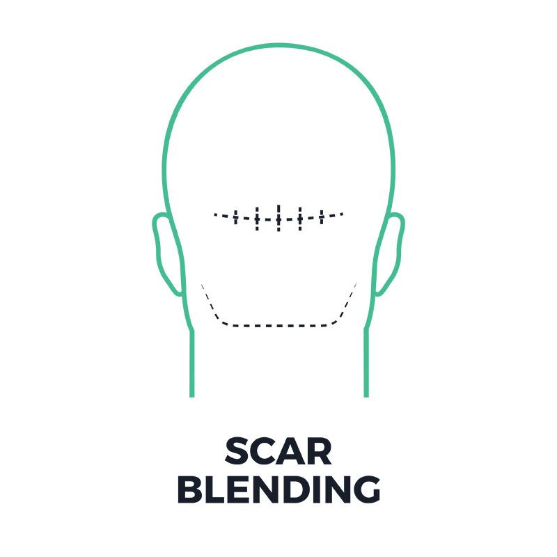 smp-scar-blending-smpflorida